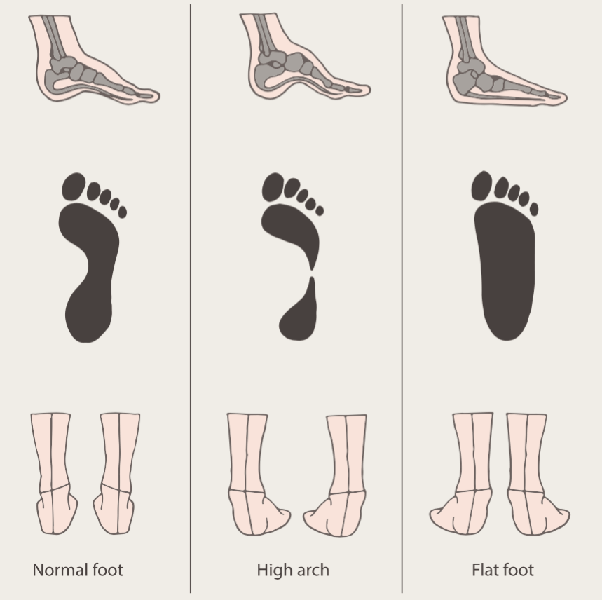 Flat feet exercises