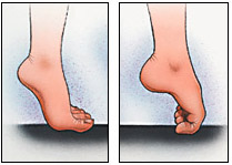 Stretching toe and fingers out and curling toe in. Try toe curls with towel under pulling in while curling - Flat Feet Exercises