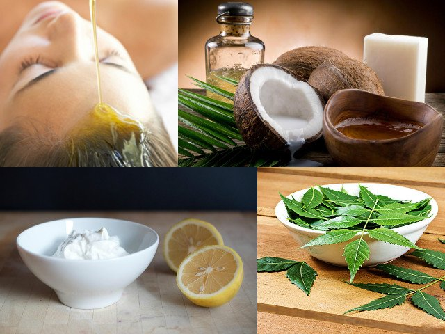 Itchy Scalp And Dandruff Home Remedies